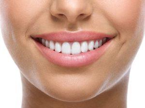 blanquear dientes naturalmente
