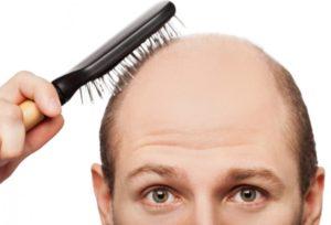 cómo detenar la caída de pelo